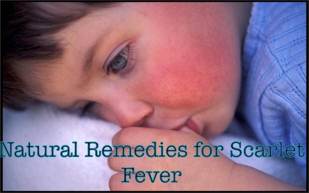 Image result for scarlet fever natural remedies